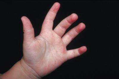 Hand Swelling in Children