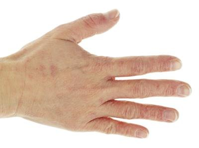 Differences Between Eczema & Psoriasis