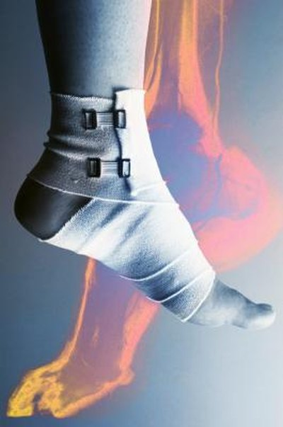 How to Lose Weight With an Achilles Injury