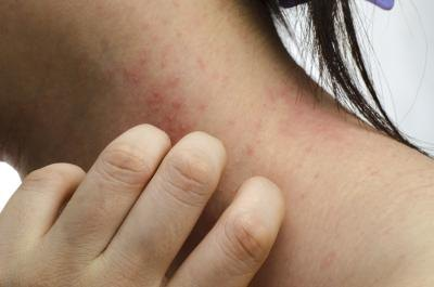 Home Remedies to Stop an Itchy Rash