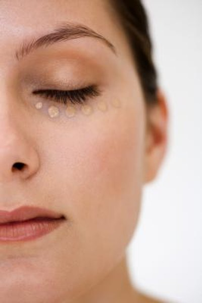How to Reduce Dark Circles Under the Eyes