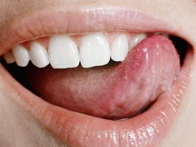 Causes for Ulcers on the Tongue