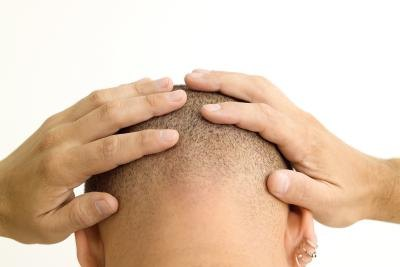 Hair Growth Supplements & Pills in India