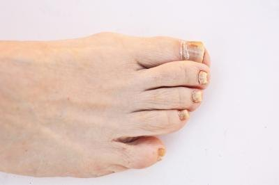 What Are the Causes of Toenail Discoloration?