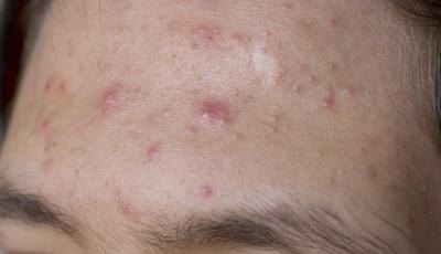 over 40 adult acne
