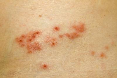How Is Shingles Diagnosed?