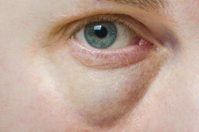 What Are the Causes of Swollen Eye Bags?