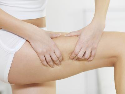 Painful Cellulite