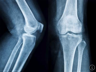 What Are the Treatments for Bone Spurs on the Leg Bone?