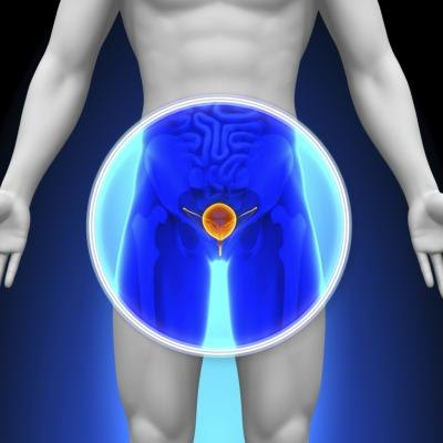 What Foods Should You Avoid With Bladder Inflammation?