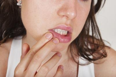 How to Treat Cold Sores When Pregnant