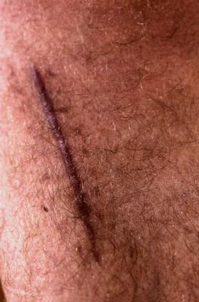 Tips on a Sore Surgical Scar