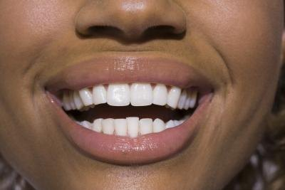 What Are the Effects of a Vitamin D Deficiency on Teeth?
