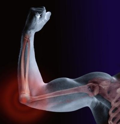 Signs of a Bone Spur in Elbow