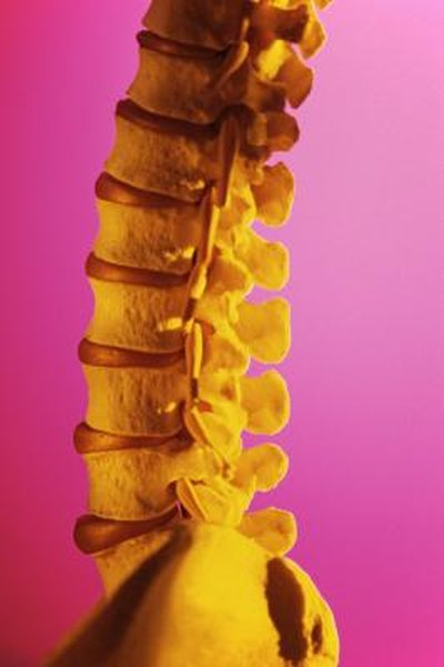 Exercise Therapy for Severe Degenerative Disc Disease L5-S1