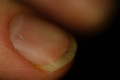 Do Vitamin Deficiencies Cause Fingernail Ridges?