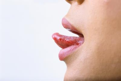How to Remove Bumps on Tongue