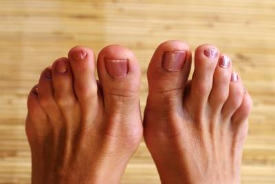 List of Foods That Cause Gout