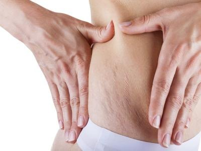 How to Avoid Stretch Marks From Weight Lifting