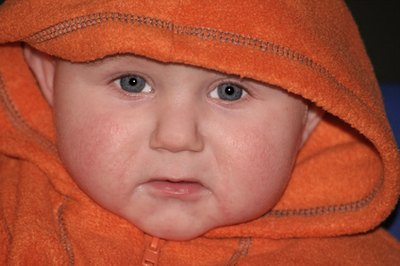 Rosacea Rash In Babies