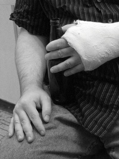 What Are the Treatments for a Hairline Fracture in the Wrist?