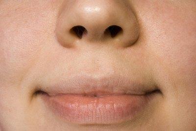 Signs   Symptoms of Herpes Simplex Virus  HSV     HSV