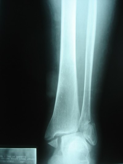 What Are the Symptoms of Stress Fractures in Ankles?