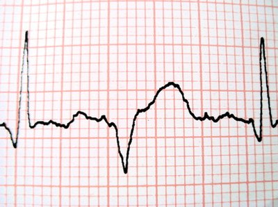 A Heart Rate During a Heart Attack