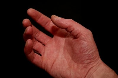 Massage Pressure Points in the Hand