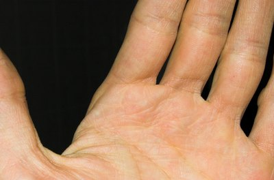 Causes of Numbness & Pain in the Left Hand