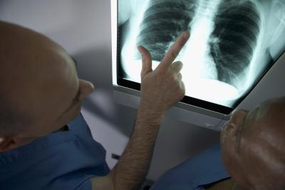 Life Expectancy With Lung Cancer