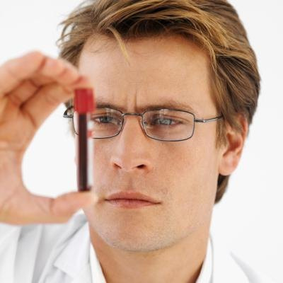 Normal DHEA Sulfate Levels in Men