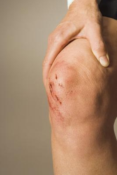 Rehabilitation for a Broken Kneecap