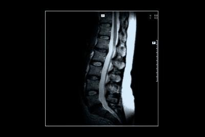 Spinal Stenosis Symptoms in C6 & C7