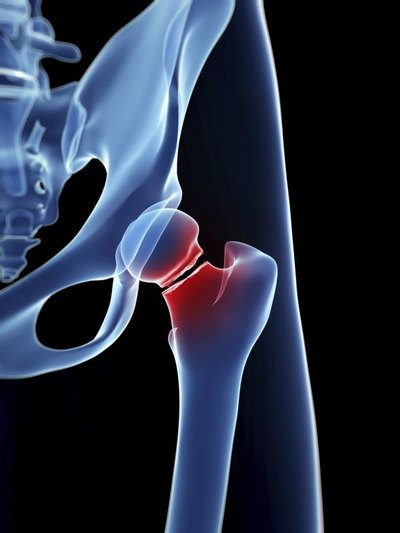 Physical Therapy Treatments of a Femur Fracture of the Thigh Bone