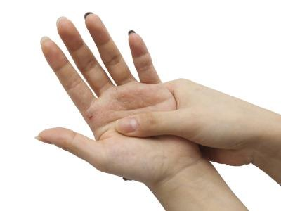 Allergy & Itchy Hands and Feet