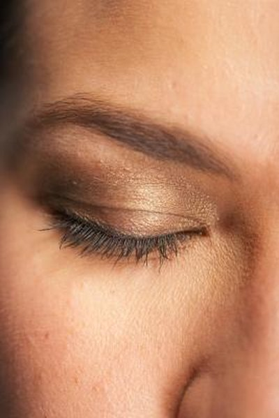 Brown Pigmentation of Eyelids