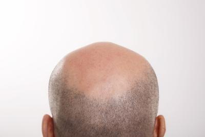 Scalp Conditions That Cause Hair Loss
