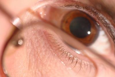 Side Effects of Dilating Eyes