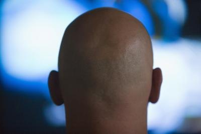 Hair Loss & Low Testosterone