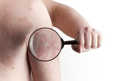 How to Get Rid of Psoriasis & Eczema