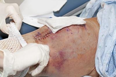 Knee Replacement Scars