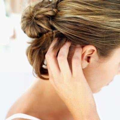 Home Remedies for an Itchy, Dry Scalp