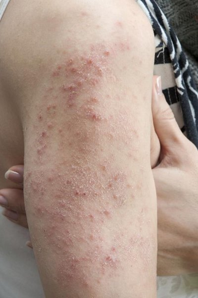 Viruses That Cause Skin Rashes
