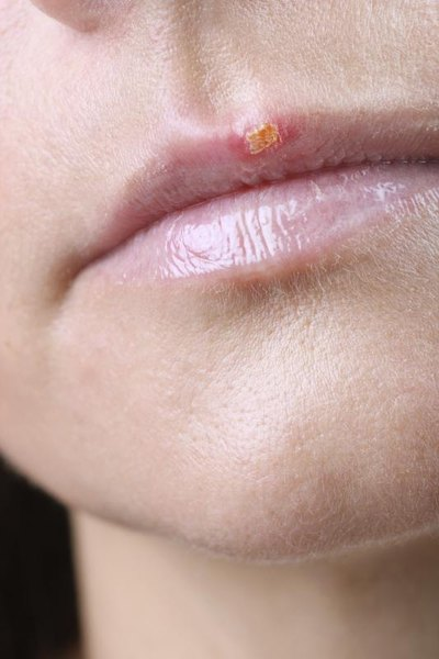 Herpes and Ayurveda
