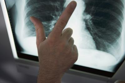 The Dangers of Tuberculosis