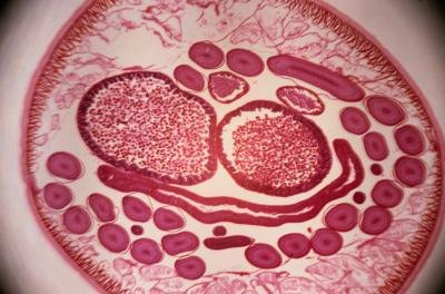 Symptoms of Roundworms in People