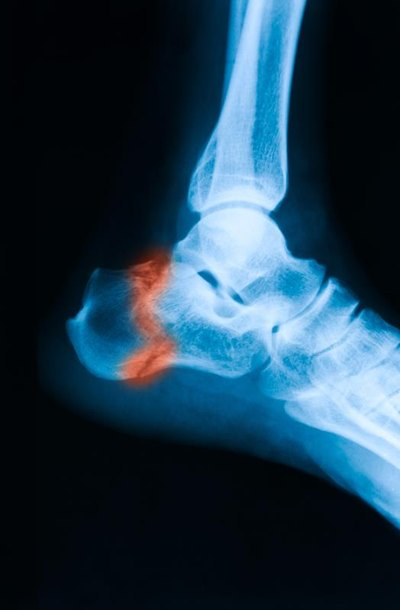 Complications of ORIF Ankle Surgery