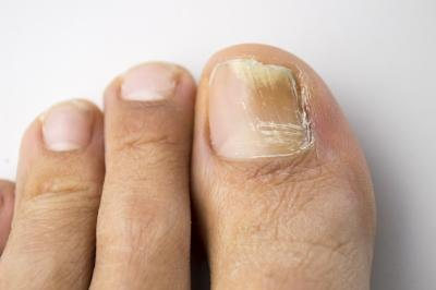 Home Remedies With Bleach for Toenail Fungus