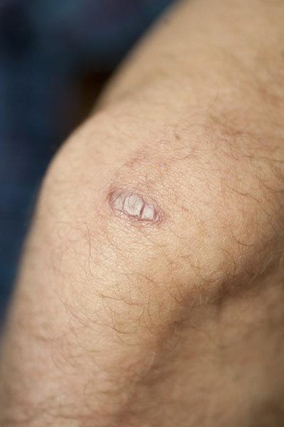 how to reduce a keloid | livestrong, Skeleton